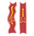 Varicose veins in human body vector image vector image