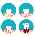 Periodontal disease icons set vector image vector image