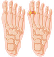 Diagram of gout in human toe vector image vector image