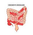 crohn desease intestines medicine anatomy i