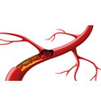 red blood cells in an artery blocked vector image vector image