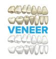 veneer dental veneer concept medical vector image