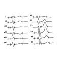 cardiogram heartbeat schedule vector image vector image
