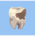 unhealthy tooth with caries dental problems vector image