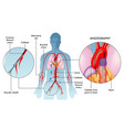 Angiography operation
