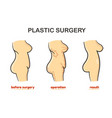 plastic surgery process vector image