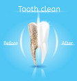 tooth cleaning realistic dental concept vector image