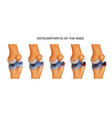 osteoarthritis of the knee vector image vector image