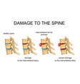 damage to the spine vector image vector image