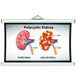 Diagram of polycystic kidney vector image vector image