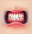 dental braces oral brakets system 3d vector image vector image