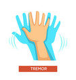 hand tremor neurological disorder human body part vector image