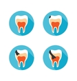 Stages of tooth disease vector image vector image
