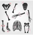 bones fractures icons vector image