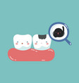 decayed tooth and bacteria tooth and teeth of de vector image vector image