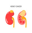 kidney cancer concept vector image