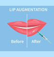 lip augmentation before and after lip filler vector image vector image