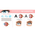 astigmatism correction with contact lenses banner vector image vector image