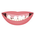 kids mouth with a too big mandible and high smile vector image vector image