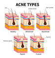 acne types pimple skin diseases anatomy medical vector image vector image