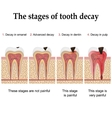 Tooth decay formation vector image