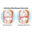 Arthritis of the human knee joint vector image vector image