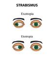 strabismus esotropia exotropia infographics vector image vector image