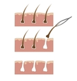Example of hair removal from skin with tweezers vector image