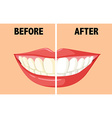 Before and after brushing teeth vector image