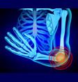 x-ray human hand anatomy shoulder g