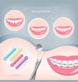 dentistry instruments metal braces vector image vector image