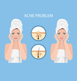 face with acne vector image