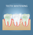 teeth whitening medical poster design vector image vector image