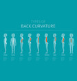 types of back curvature medical desease vector image vector image