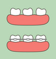 step of orthodontics treatment vector image vector image