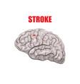 a hemorrhagic stroke vector image