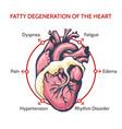 fatty degeneration heart symptoms of vector image vector image
