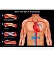 Stent with balloon Angioplasty vector image vector image