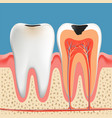 tooth decay anatomy poster vector image