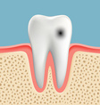 image of a human tooth with caries vector image vector image