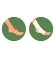 open torn cut wound bruised foot and medical vector image