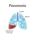 Pneumonia The anatomical structure of the human vector image vector image