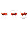 stages of bladder cancer vector image vector image
