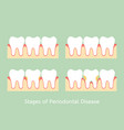 step of periodontal disease vector image vector image
