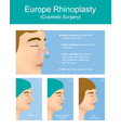 rhinoplasty plastic surgery vector image vector image