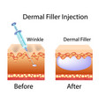 with cosmetic filler or dermal vector image vector image