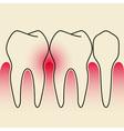 Periodontal Disease vector image
