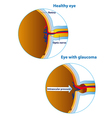 of an eyeball in a healthy state and in glaucoma vector image vector image