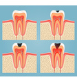 stages of tooth decay vector image vector image