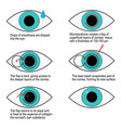procedure of laser correction of vision step by vector image